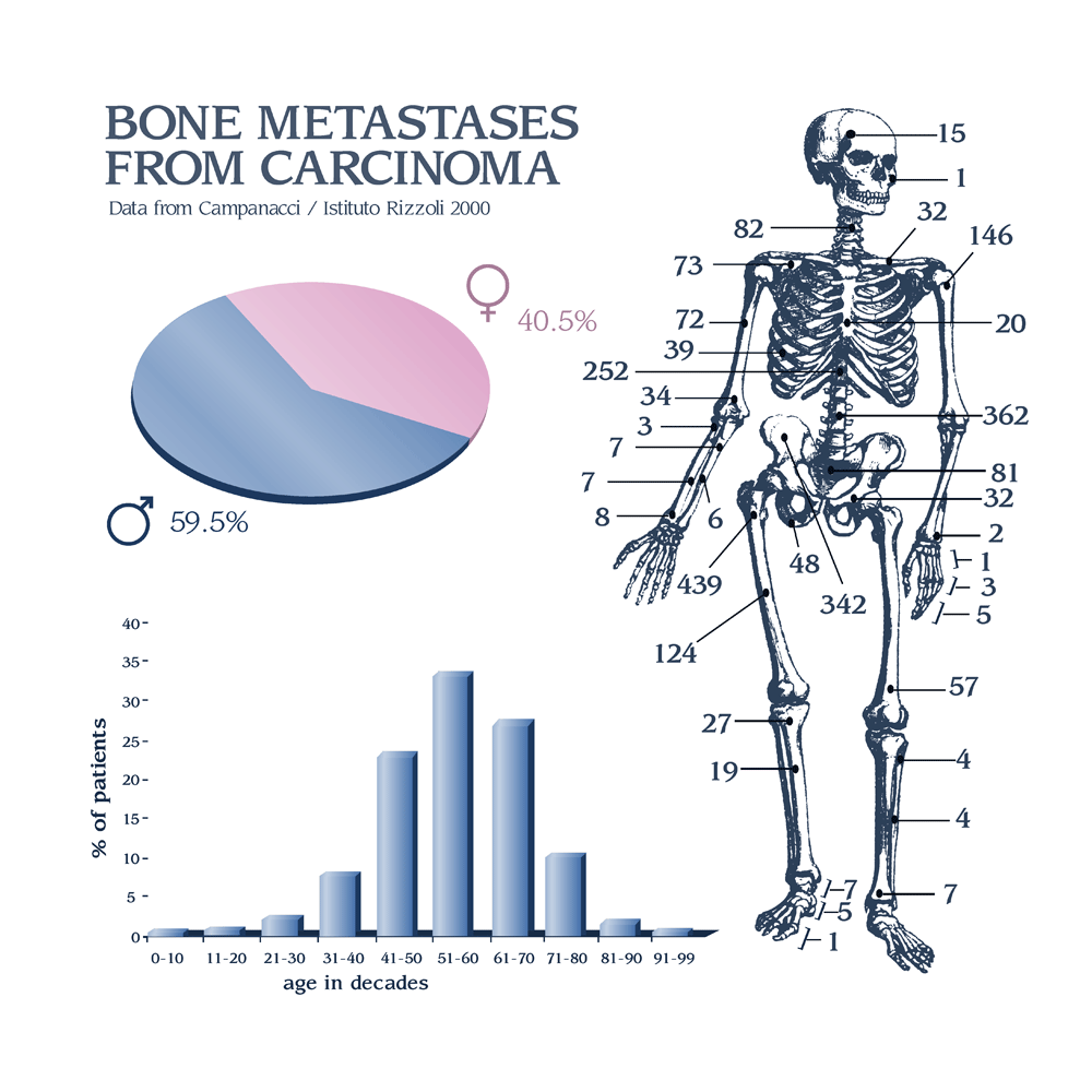 Breast cancer metastatic to bone